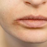 Manuka Honig bei Herpes