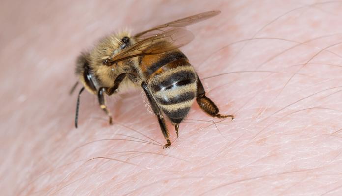 Bienenstich - Was tun